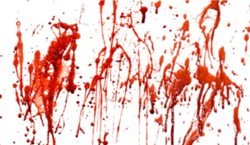 Приснилось много крови или пятна крови