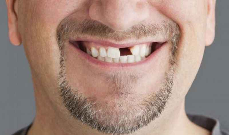 Шатающийся зуб предупреждает о болезнях